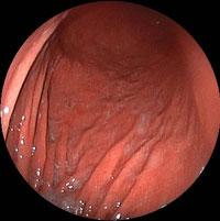 図:5   ピロリ菌感染のある胃