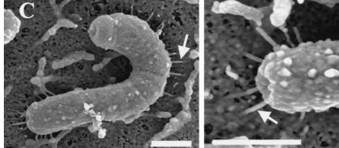 胃の粘膜の表面中のピロリ菌  矢印の部分は針です。針を出して毒素を胃の粘膜に注入しています。