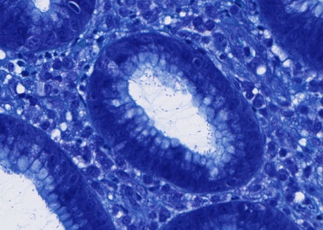 トルイジンブルー染色で組織を見た場合、ピロリ菌の細長い菌体が観察できる。
